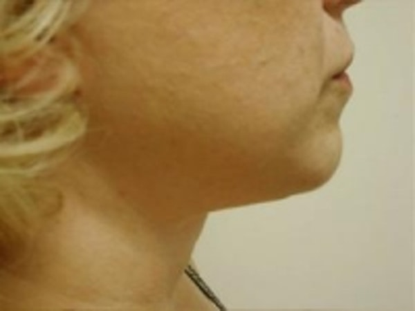 Liposuction Gallery - Patient 5930283 - Image 2