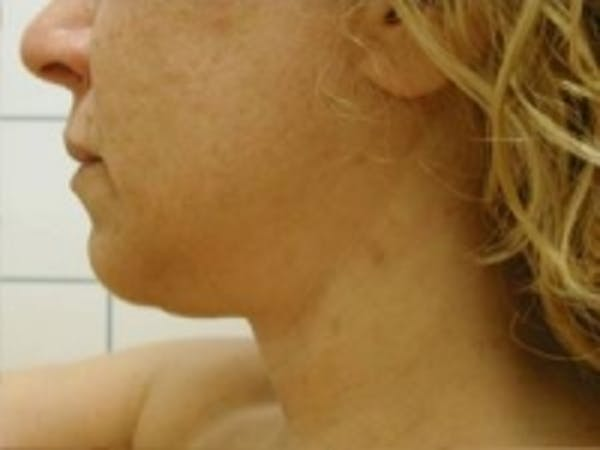 Liposuction Gallery - Patient 5930283 - Image 3