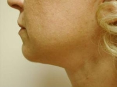 Liposuction Gallery - Patient 5930283 - Image 4