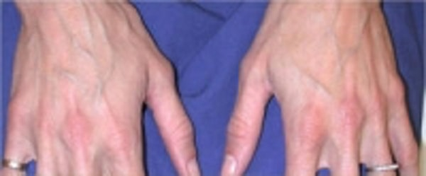 Hand Rejuvenation before and after photos
