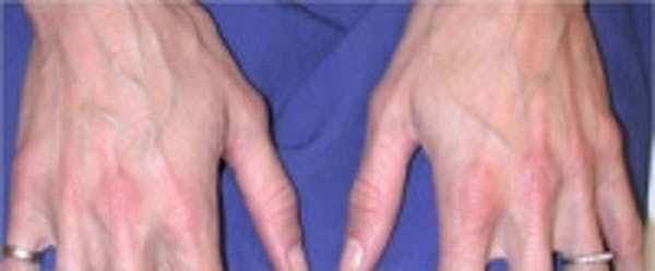 Hand Rejuvenation Gallery - Patient 5930300 - Image 1