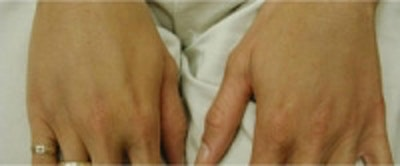 Hand Rejuvenation Gallery - Patient 5930300 - Image 2