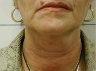 Liposuction Gallery - Patient 5930303 - Image 2