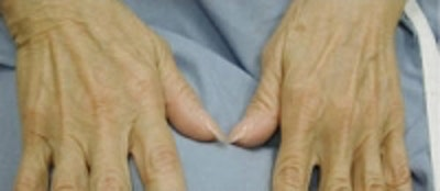 Hand Rejuvenation Gallery - Patient 5930302 - Image 1
