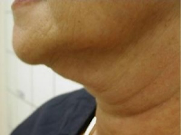 Liposuction Gallery - Patient 5930303 - Image 3