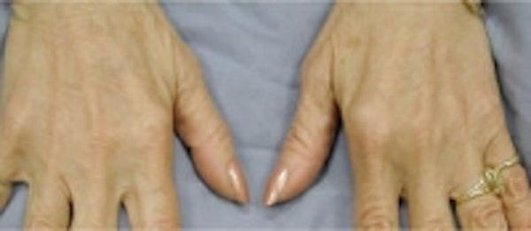 Hand Rejuvenation Gallery - Patient 5930302 - Image 2