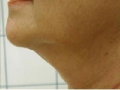 Liposuction Gallery - Patient 5930303 - Image 4
