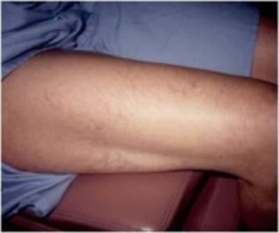 Spider Veins Gallery - Patient 5930326 - Image 1