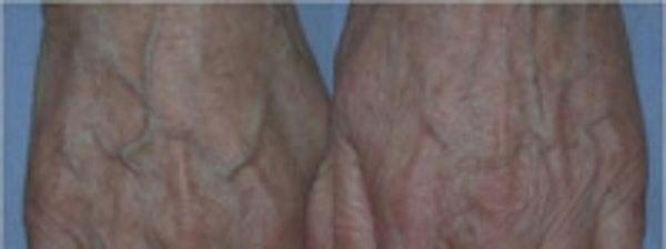 Hand Rejuvenation Gallery - Patient 5930325 - Image 1