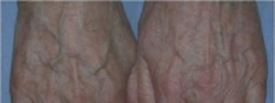 Hand Rejuvenation Gallery - Patient 5930325 - Image 1