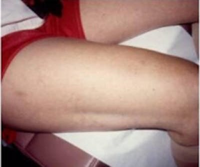 Spider Veins Gallery - Patient 5930326 - Image 2