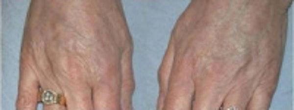 Hand Rejuvenation Gallery - Patient 5930325 - Image 2