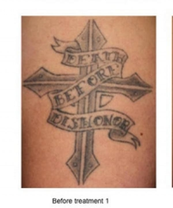 Tattoo Removal Gallery - Patient 5930328 - Image 1