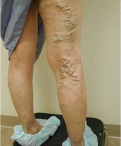 Spider Veins Gallery - Patient 5930330 - Image 1