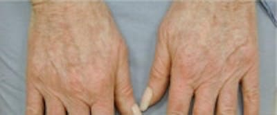 Hand Rejuvenation Gallery - Patient 5930329 - Image 1