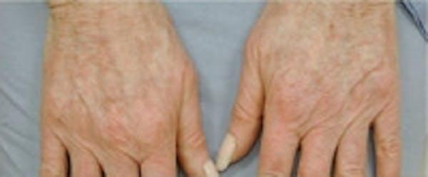 Hand Rejuvenation Gallery - Patient 5930329 - Image 1