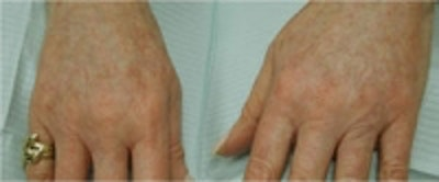 Hand Rejuvenation Gallery - Patient 5930329 - Image 2