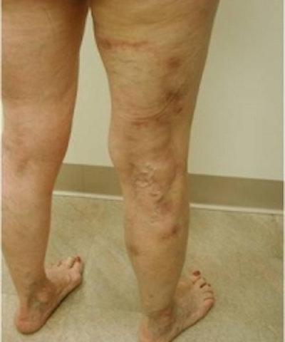 Spider Veins Gallery - Patient 5930330 - Image 2
