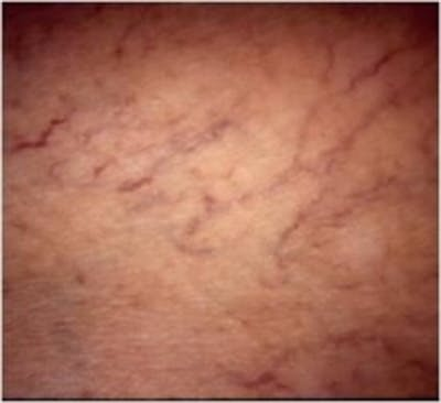 Spider Veins Gallery - Patient 5930333 - Image 1