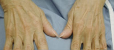 Hand Rejuvenation Gallery - Patient 5930334 - Image 5