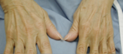 Hand Rejuvenation Gallery - Patient 5930334 - Image 1