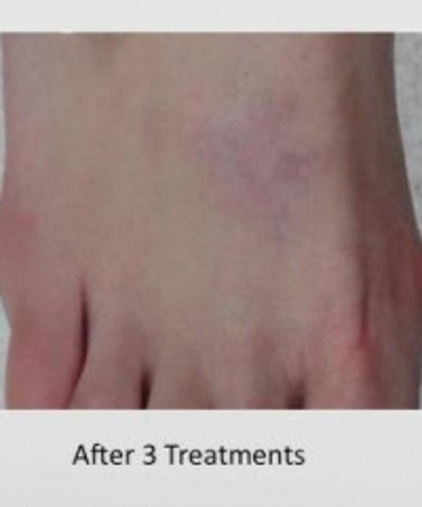 Tattoo Removal Gallery - Patient 5930332 - Image 2