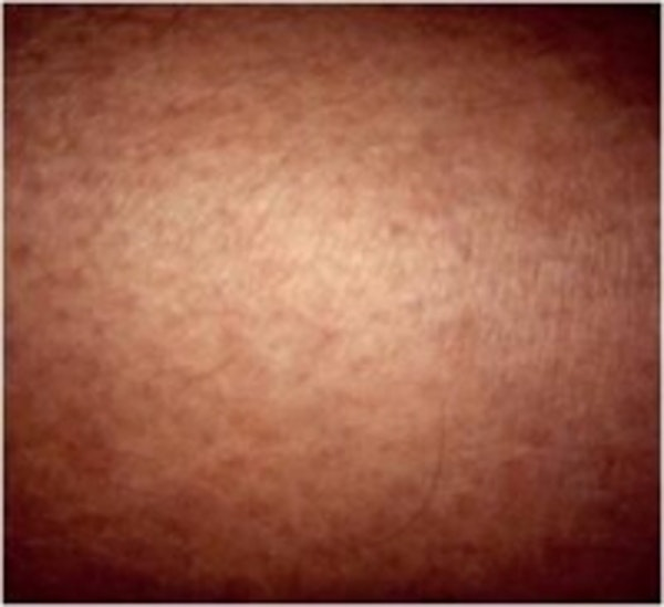 Spider Veins Gallery - Patient 5930333 - Image 2