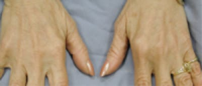 Hand Rejuvenation Gallery - Patient 5930334 - Image 2