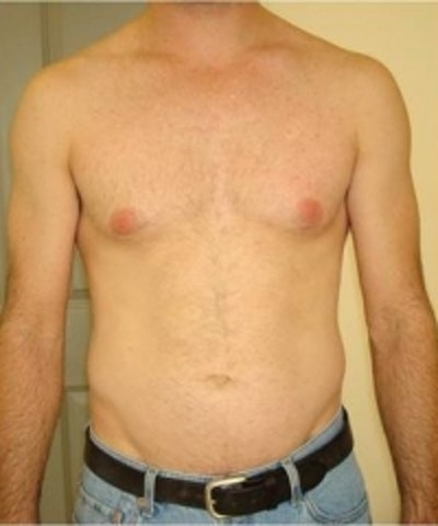 Laser Hair Removal Gallery - Patient 5930335 - Image 2