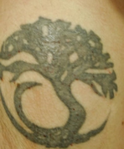 Tattoo Removal Gallery - Patient 5930339 - Image 1