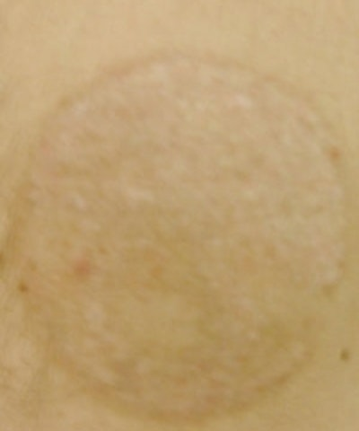 Tattoo Removal Gallery - Patient 5930339 - Image 2