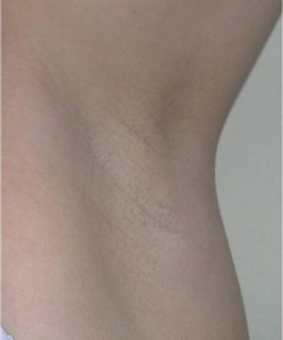Laser Hair Removal Gallery - Patient 5930337 - Image 2