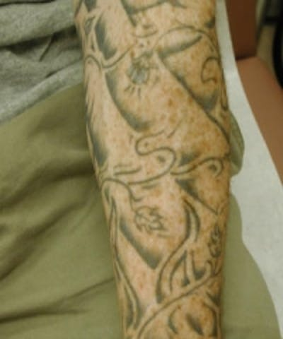 Tattoo Removal Gallery - Patient 5930345 - Image 1