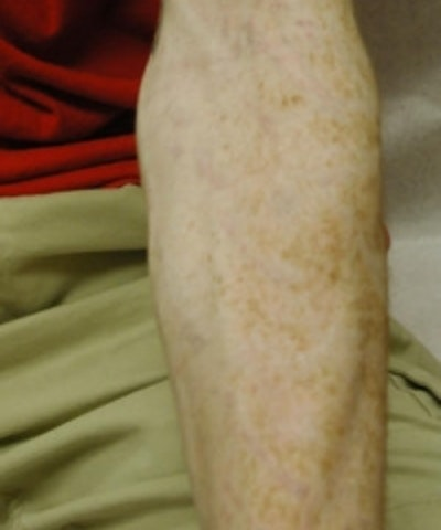 Tattoo Removal Gallery - Patient 5930345 - Image 2
