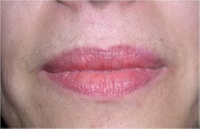 Laser Hair Removal Gallery - Patient 5930347 - Image 1