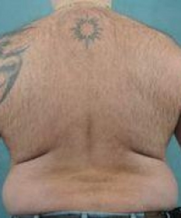 Laser Hair Removal Gallery - Patient 5930350 - Image 3