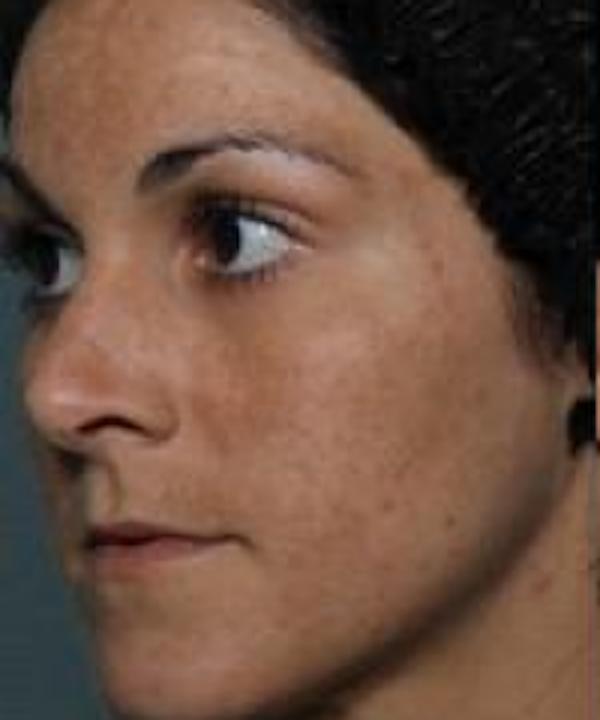 Melasma Gallery - Patient 5930361 - Image 1