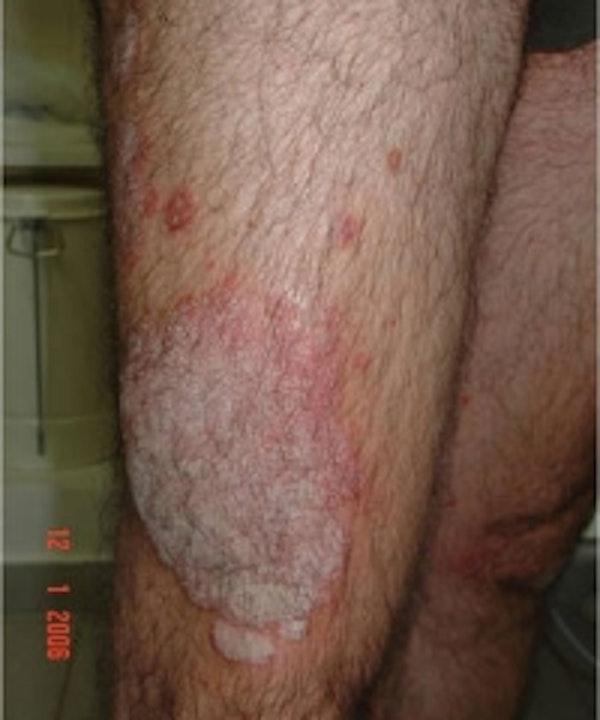 Psoriasis Gallery - Patient 5930359 - Image 1
