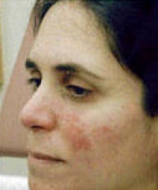 Acne & Rosacea Gallery - Patient 5930360 - Image 1