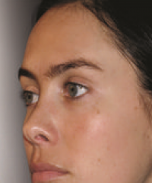 Melasma Gallery - Patient 5930361 - Image 4