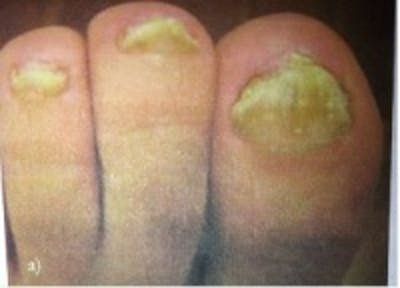 Toe Nail Fungus Gallery - Patient 5930365 - Image 1