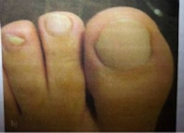 Toe Nail Fungus Gallery - Patient 5930365 - Image 2