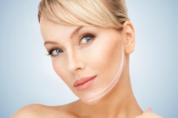 JUVA Skin & Laser Center Blog | Keep the Smile; Ditch the Smile Lines!