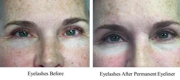 JUVA Skin & Laser Center Blog | The Eyes Say It All