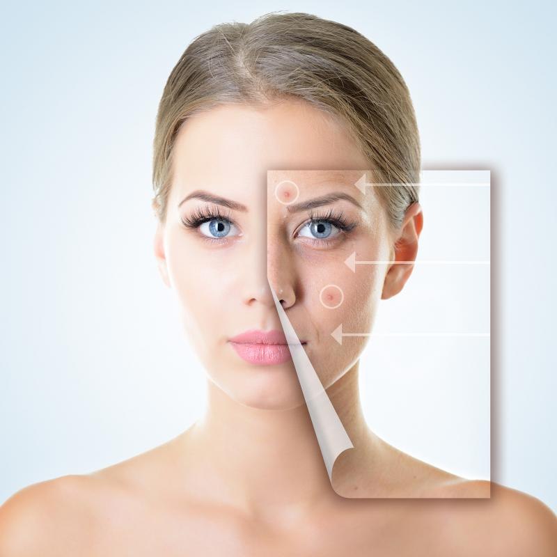JUVA Skin & Laser Center Blog | How Can I Get Rid of My Acne Scars?