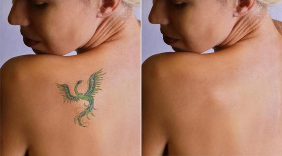 JUVA Skin & Laser Center Blog | Tired of Those Tattoos?