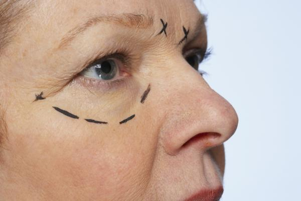 JUVA Skin & Laser Center Blog | Is the Madonna Eyelift or Eyelid Surgery Right For You?