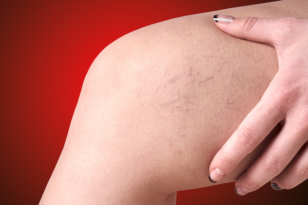 JUVA Skin & Laser Center Blog   Are You Ready to Get Rid of Spider Veins?