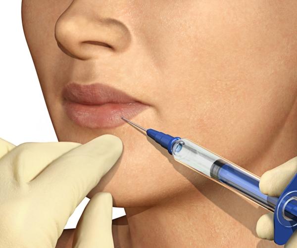 JUVA Skin & Laser Center Blog | Lip Augmentation Options