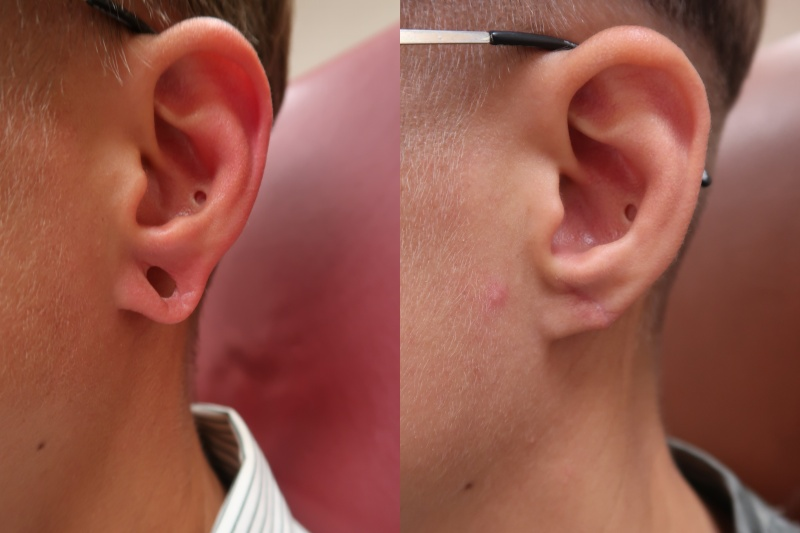 JUVA Skin & Laser Center Blog | Is Earlobe Repair A Real Thing?